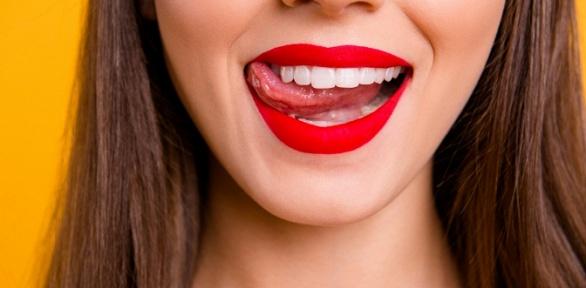 Осветление зубов вкосметической студии White and Smile