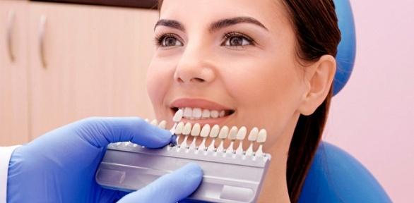 Косметическое отбеливание зубов встудии I-Smile
